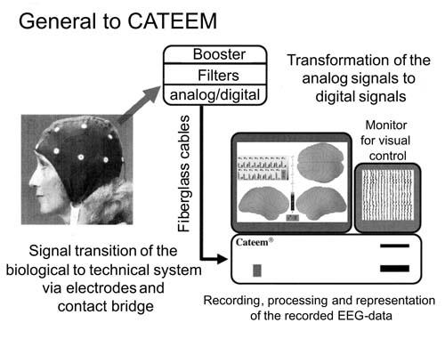 Рис. 2. Схема снятия биоэлектрического сигнала с теменной области.